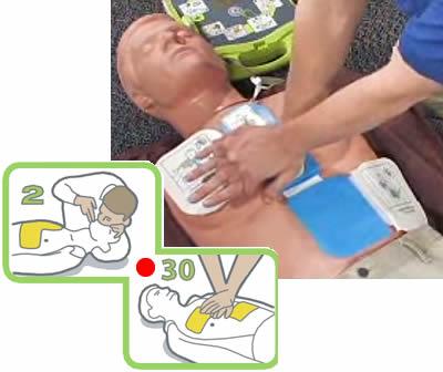 Сердечно - легочная реанимация при помощи автомтического дефибриллятора AED Plus