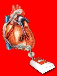 cardiocode1